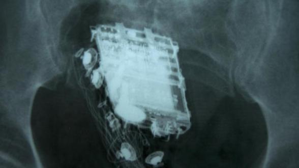 portable-rectum.jpg